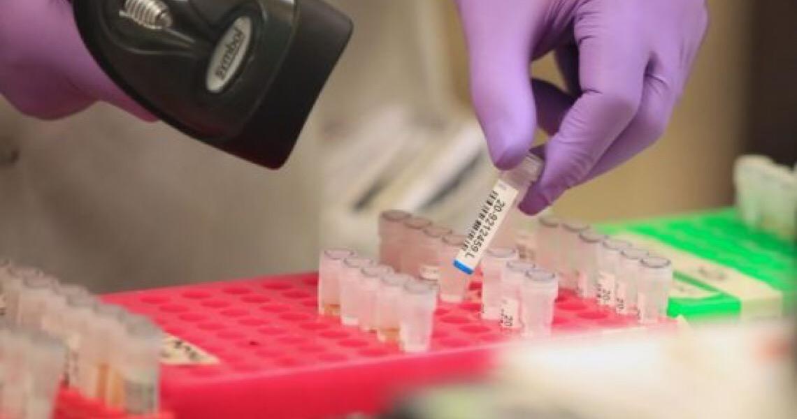 Distrito Federal testará tratamento de Covid-19 com plasma de pessoas recuperadas