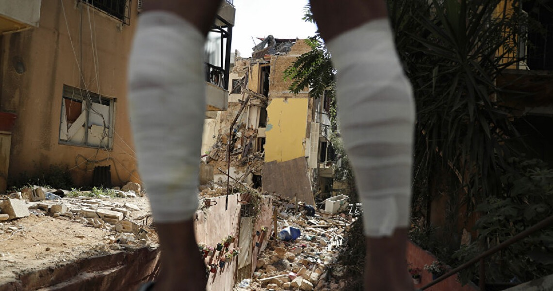 Pesquisadores do Ceará oferecem pele de tilápia para tratar feridos por queimaduras no Líbano