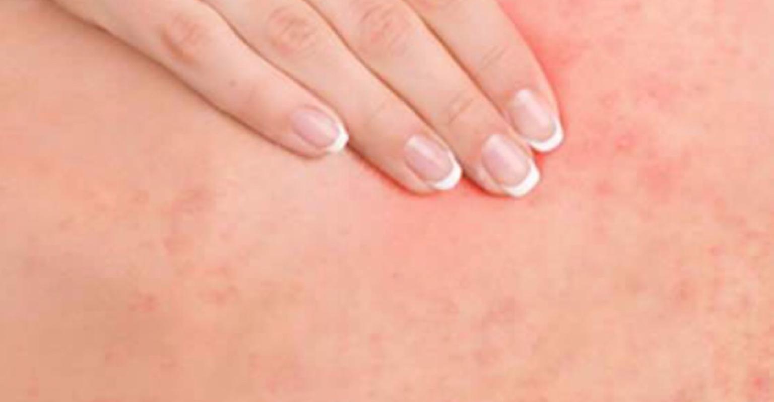 Psoríase: Saiba o que é e como tratar a doença inflamatória da pele