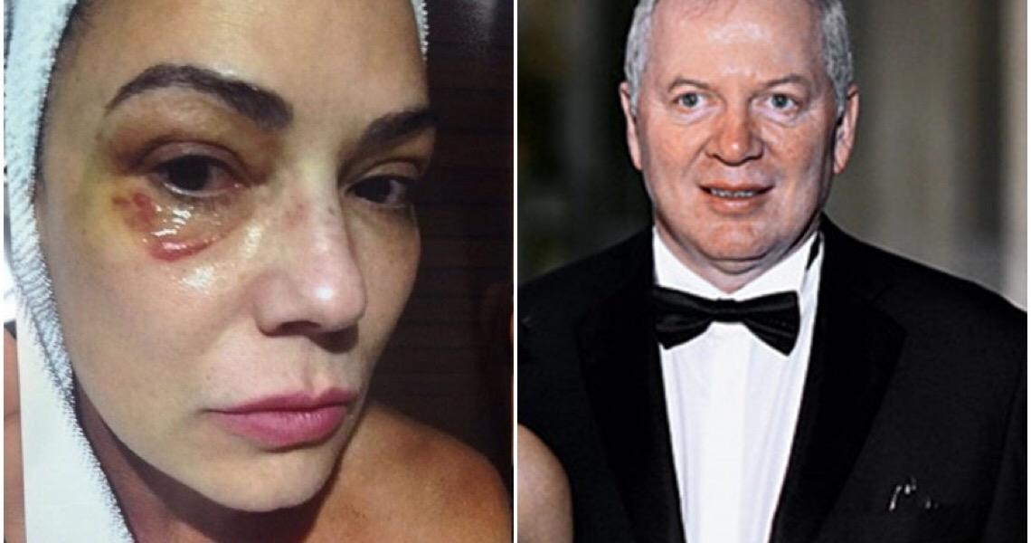 STF nega recurso de empresário condenado por agredir atriz Luiza Brunet