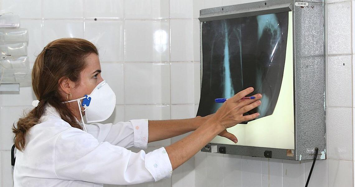 Pandemia reduz avanços no combate à tuberculose, diz especialista