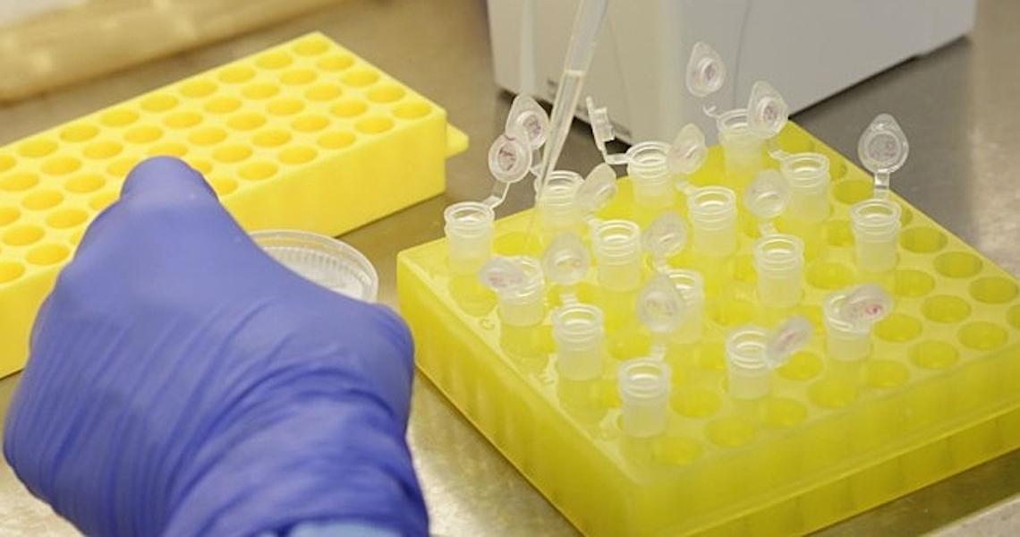 Deputados buscam recursos para viabilizar produção de vacinas pela UFMG
