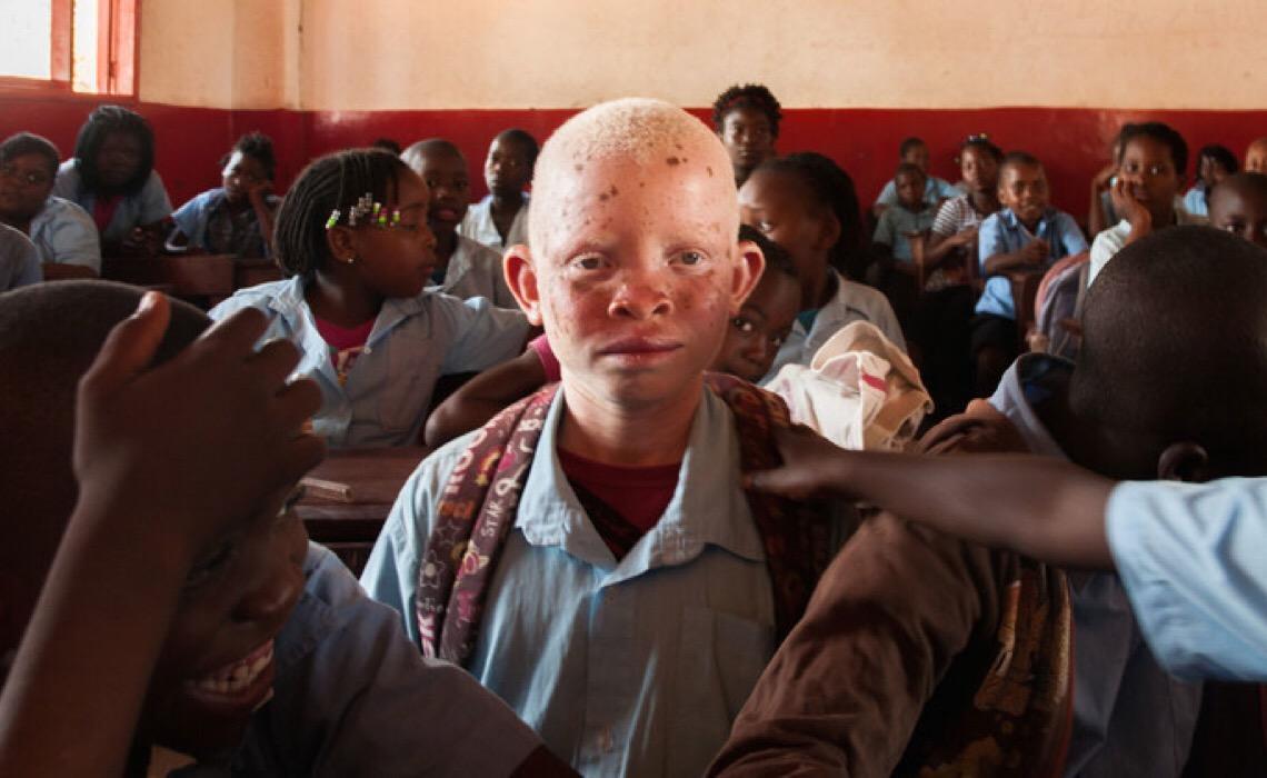 Unesco quer Proteção e Promoção dos Direitos Humanos das Pessoas com Albinismo