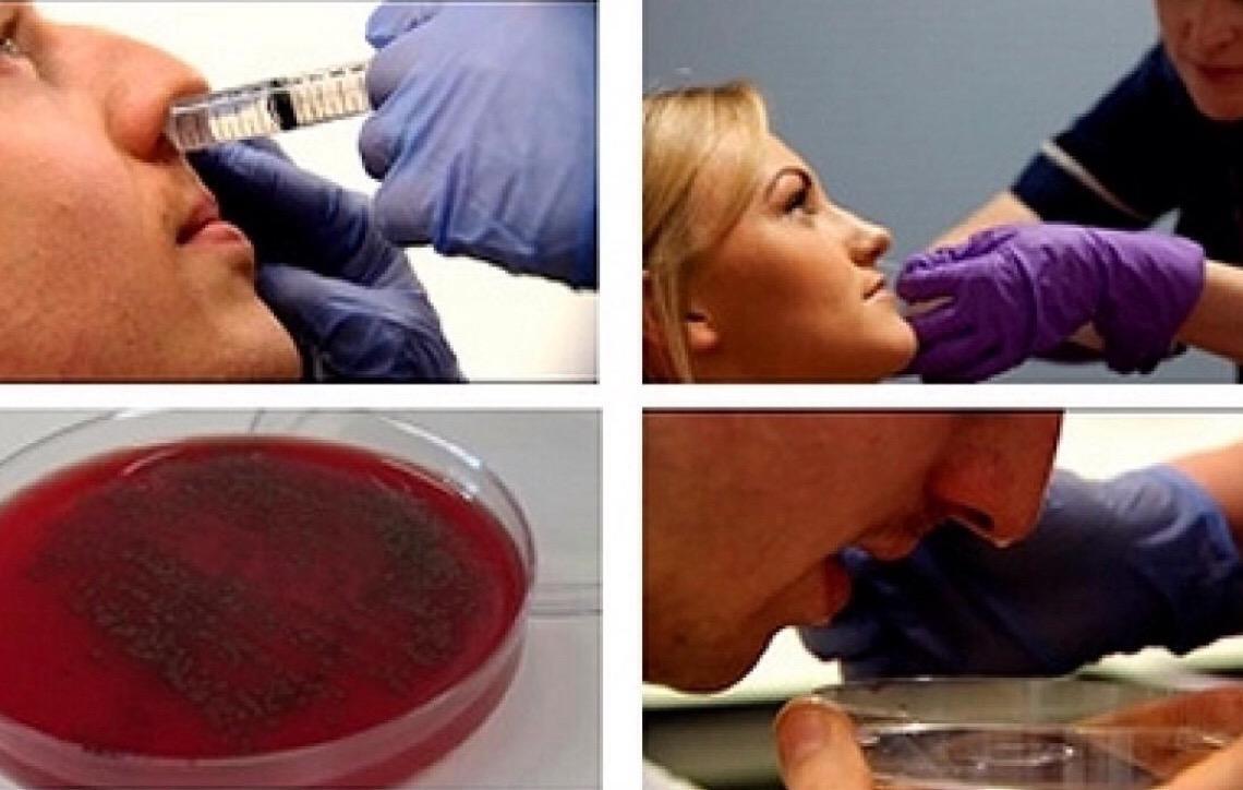 Vírus da gripe aumenta suscetibilidade à pneumonia