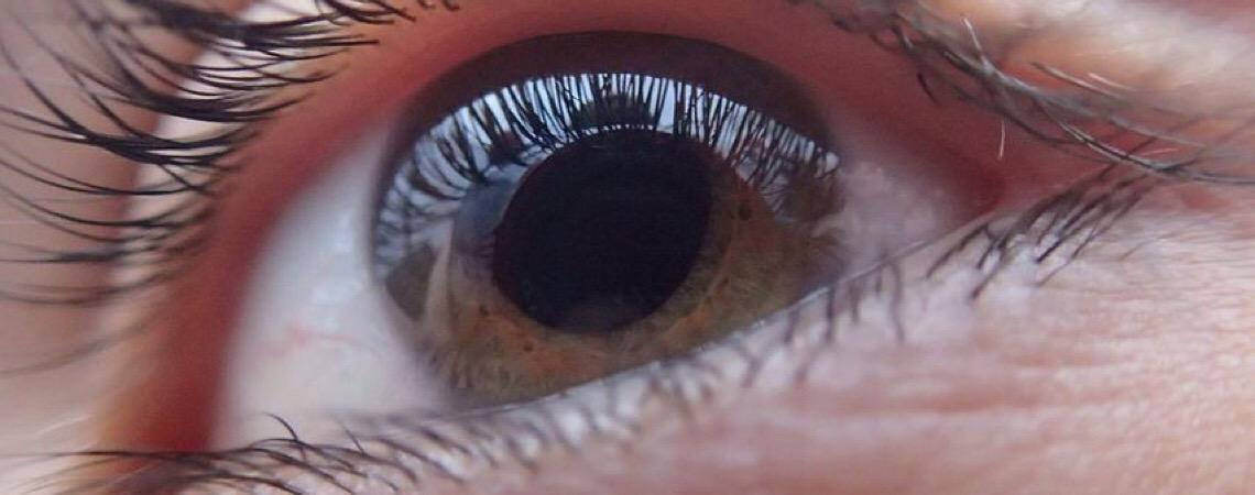 Entenda o glaucoma, uma doença furtiva