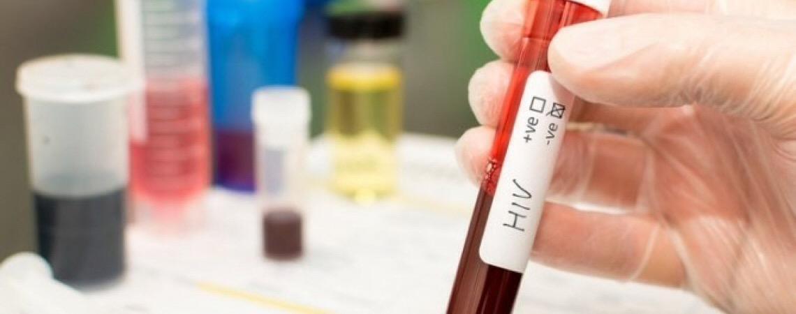 Cientistas removem, pela primeira vez, vírus HIV do genoma de animais vivos