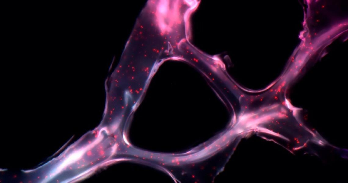 Cientistas descobrem molécula que poderá tratar câncer de ovário