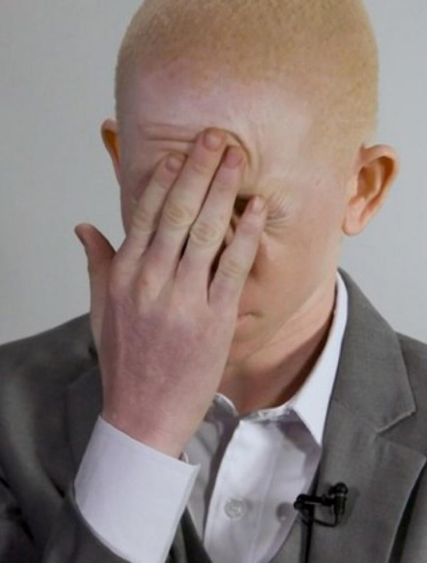 """Relatora diz que pessoas com albinismo no Brasil vivem """"perdidas nas entrelinhas"""""""