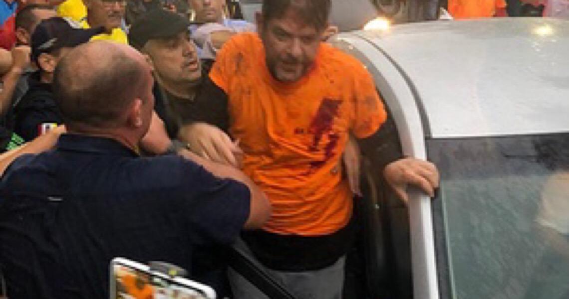 Irmão de Cid, prefeito de Sobral culpa Congresso por tiros em senador no CE