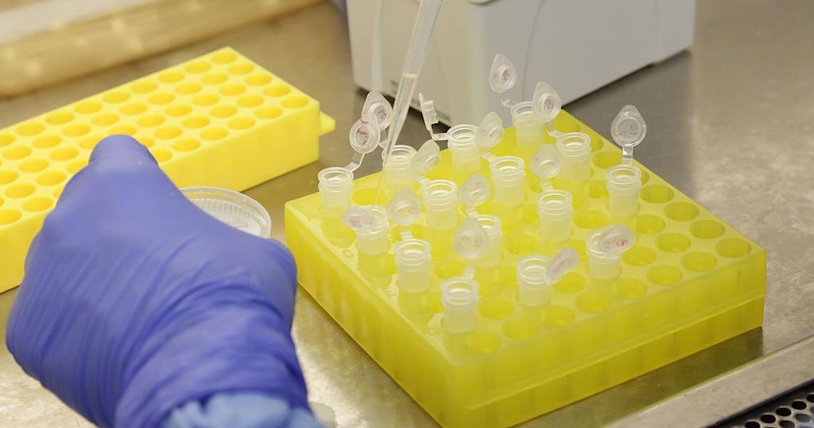 Cientistas identificam proteína que transporta o novo coronavírus